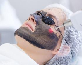 Карбоновый пилинг – клиника Gold Laser