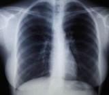 Ученые заявили о новой опасности рентгена