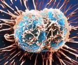 Продукты, которые борятся с онкозаболеваниями, - врачи